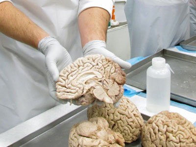 OHSU medical students displaying a human brain