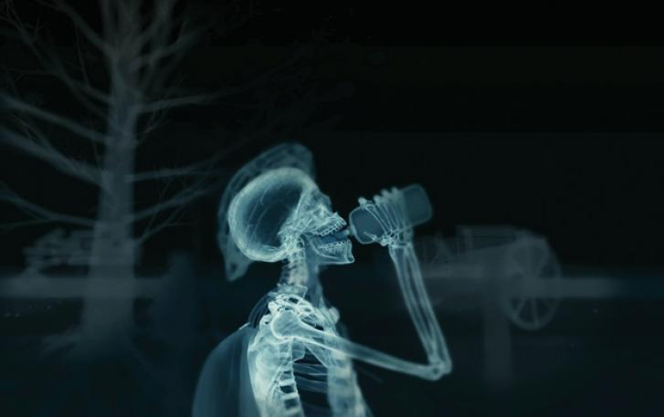 X-ray image of cyclist with water bottle